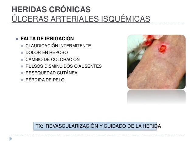 HERIDAS CRÓNICAS ÚLCERAS ARTERIALES ISQUÉMICAS  FALTA DE IRRIGACIÓN  CLAUDICACIÓN INTERMITENTE  DOLOR EN REPOSO  CAMBI...