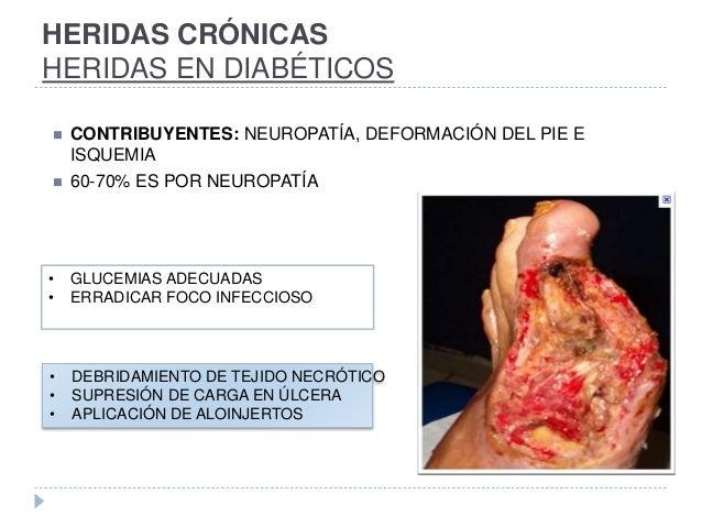 HERIDAS CRÓNICAS HERIDAS EN DIABÉTICOS  CONTRIBUYENTES: NEUROPATÍA, DEFORMACIÓN DEL PIE E ISQUEMIA  60-70% ES POR NEUROP...