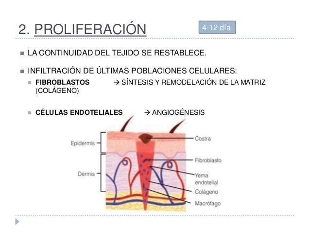 2. PROLIFERACIÓN  LA CONTINUIDAD DEL TEJIDO SE RESTABLECE.  INFILTRACIÓN DE ÚLTIMAS POBLACIONES CELULARES:  FIBROBLASTO...