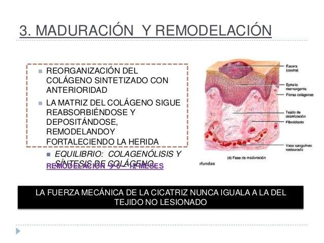 3. MADURACIÓN Y REMODELACIÓN  REORGANIZACIÓN DEL COLÁGENO SINTETIZADO CON ANTERIORIDAD  LA MATRIZ DEL COLÁGENO SIGUE REA...