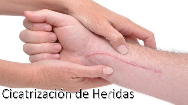 Resultado de imagen para cicatrizacion de heridas