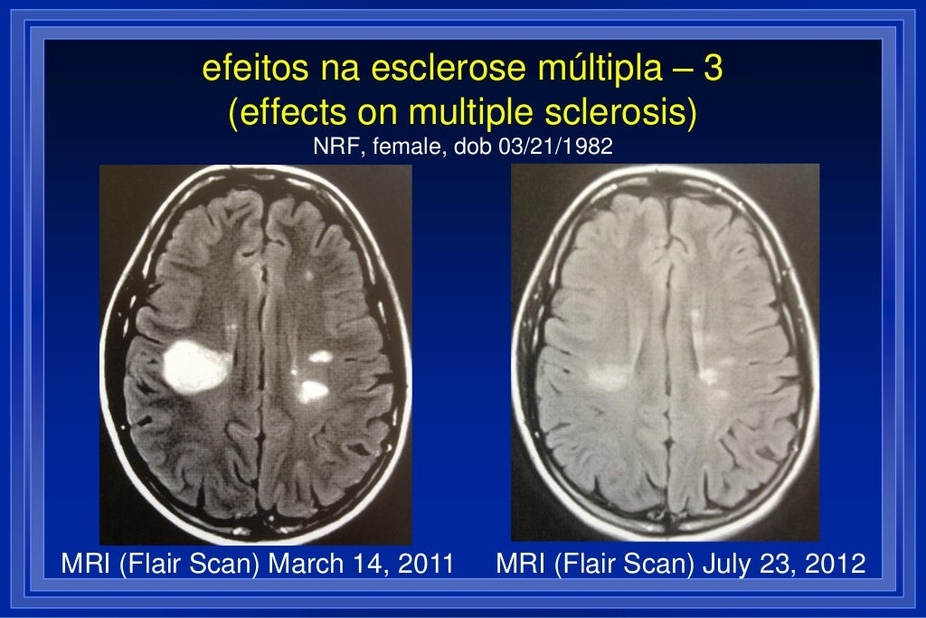 Multiple Sclerosis Testimonials (Coimbra Protocol) - Page 2