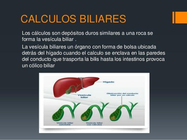 CALCULOS BILIARESLos cálculos son depósitos duros similares a una roca seforma la vesícula biliar .La vesícula biliares un...