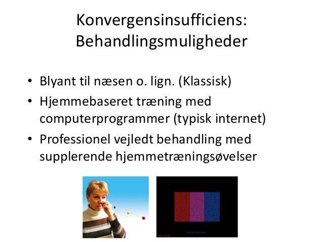 Konvergensinsufficiens: Behandlingsmuligheder • Blyant til næsen o. lign. (Klassisk) • Hjemmebaseret træning med computerp...