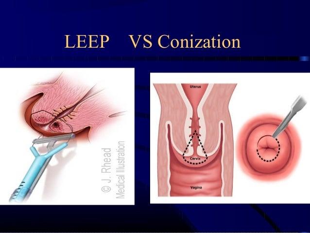 Cin&cancer cervix undergraduate
