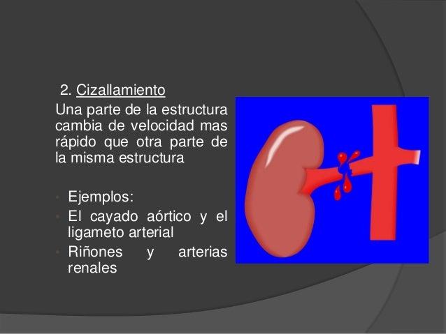 2. Cizallamiento Una parte de la estructura cambia de velocidad mas rápido que otra parte de la misma estructura • Ejemplo...