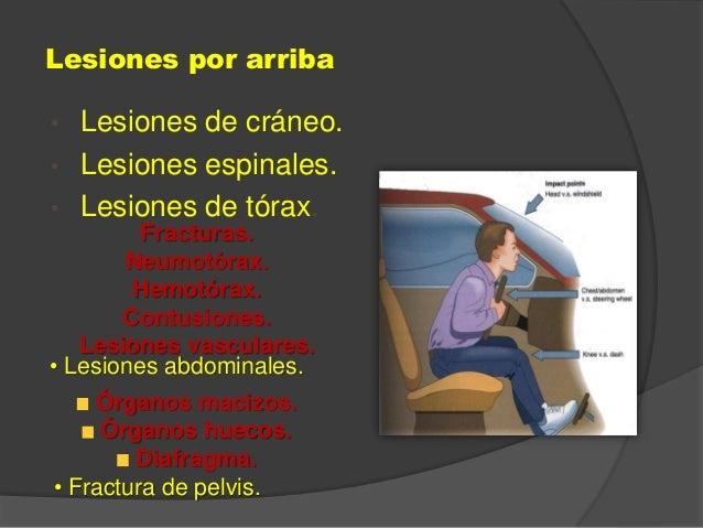Lesiones por arriba • Lesiones de cráneo. • Lesiones espinales. • Lesiones de tórax. Fracturas. Neumotórax. Hemotórax. Con...