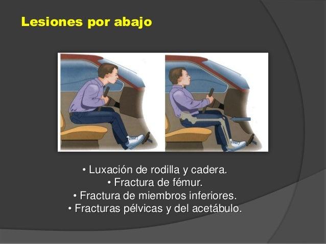 • Luxación de rodilla y cadera. • Fractura de fémur. • Fractura de miembros inferiores. • Fracturas pélvicas y del acetábu...