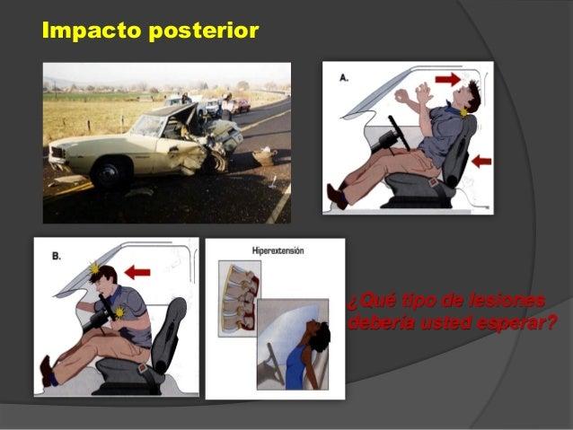 Impacto posterior ¿Qué tipo de lesiones debería usted esperar?