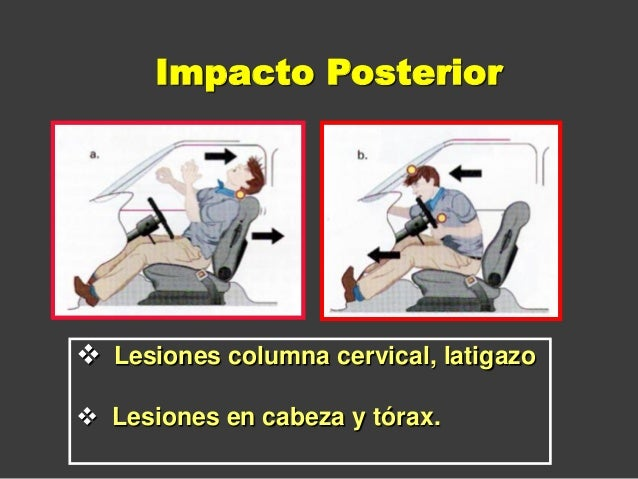  Lesiones columna cervical, latigazo  Lesiones en cabeza y tórax. Impacto Posterior