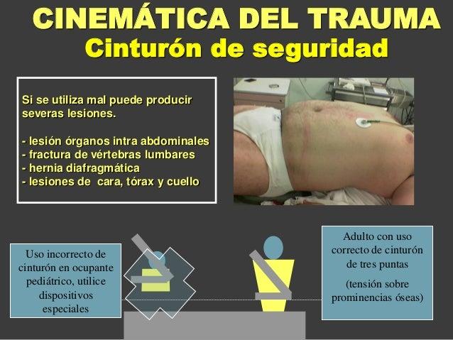 Si se utiliza mal puede producir severas lesiones. - lesión órganos intra abdominales - fractura de vértebras lumbares - h...
