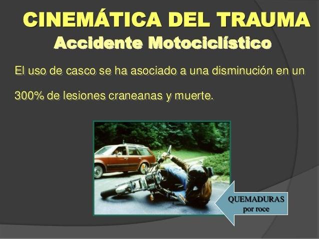 Accidente Motociclístico El uso de casco se ha asociado a una disminución en un 300% de lesiones craneanas y muerte. CINEM...