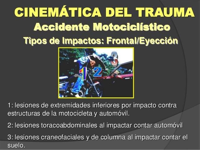 Tipos de Impactos: Frontal/Eyección CINEMÁTICA DEL TRAUMA Accidente Motociclístico 1: lesiones de extremidades inferiores ...