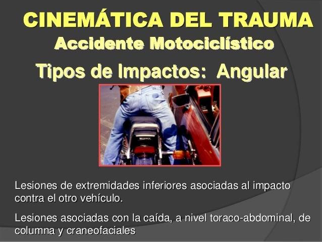 Tipos de Impactos: Angular CINEMÁTICA DEL TRAUMA Accidente Motociclístico Lesiones de extremidades inferiores asociadas al...