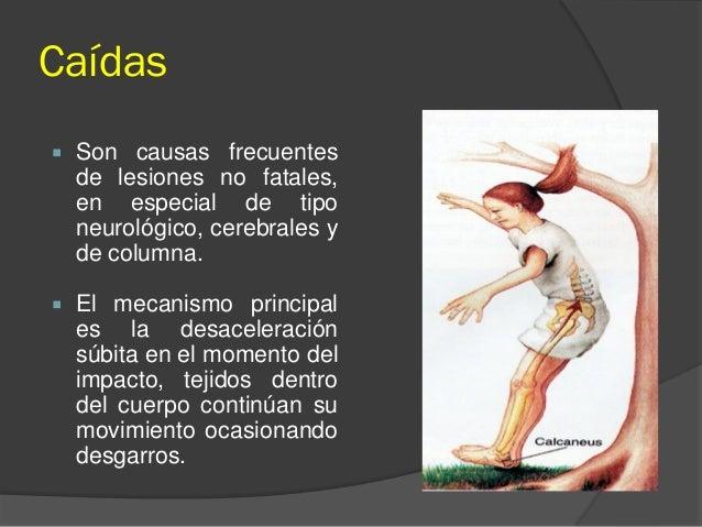 Caídas  Son causas frecuentes de lesiones no fatales, en especial de tipo neurológico, cerebrales y de columna.  El meca...
