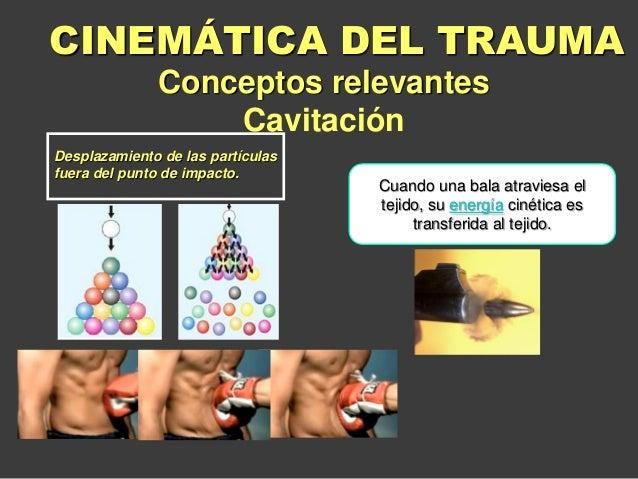 Desplazamiento de las partículas fuera del punto de impacto. Conceptos relevantes Cavitación CINEMÁTICA DEL TRAUMA Cuando ...