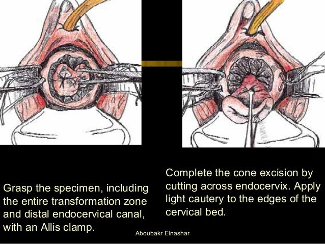 Colposcopy In Operating Room Setting