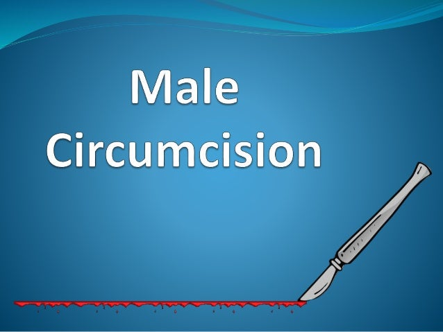 What is circumcision?  Circumcision is the surgical removal of the foreskin in  boys. Typically performed within hours or ...