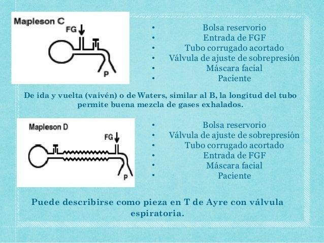 Circuito Bain : Circuitos de anestesia