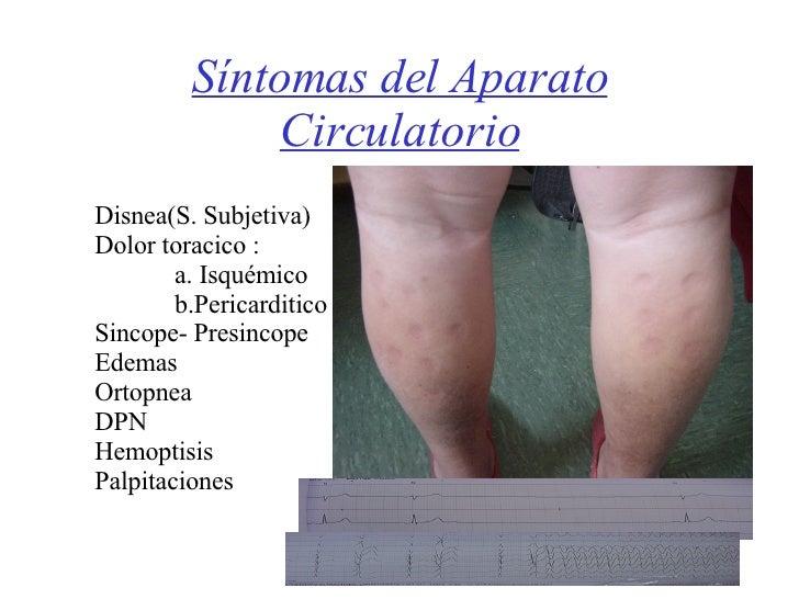 Síntomas del Aparato Circulatorio Disnea(S. Subjetiva) Dolor toracico : a. Isquémico b.Pericarditico Sincope- Presincope E...