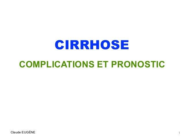 CIRRHOSE COMPLICATIONS ET PRONOSTIC . Claude EUGÈNE 1