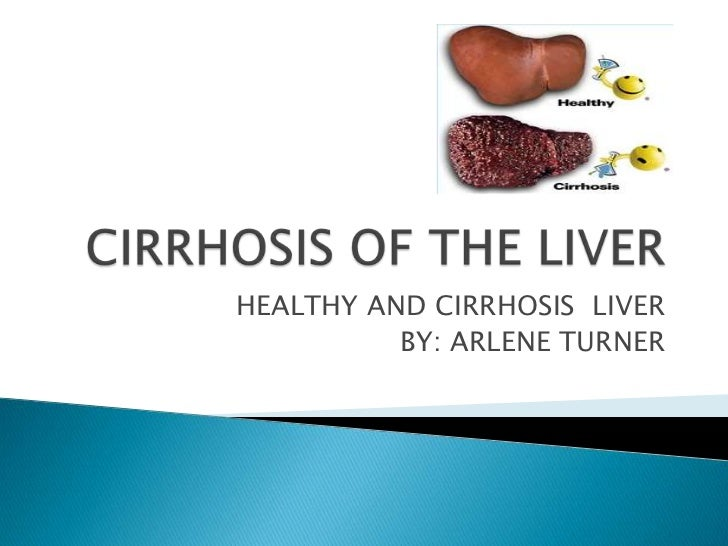 HEALTHY AND CIRRHOSIS LIVER          BY: ARLENE TURNER