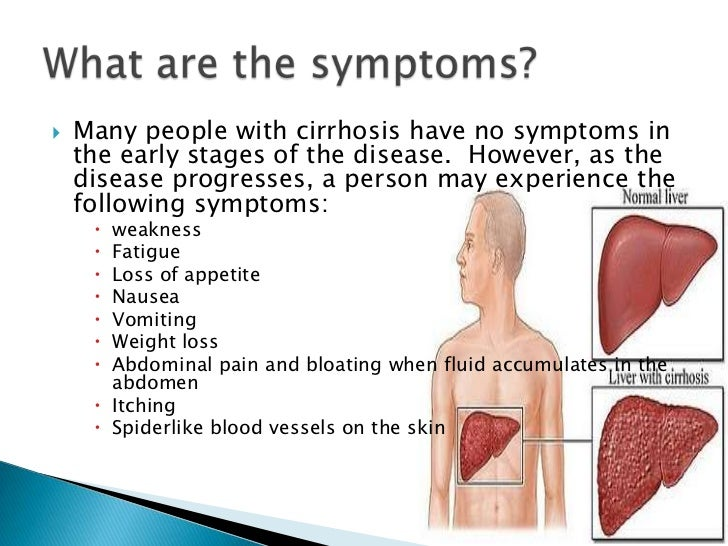 cirrhosis of the liver, Human Body