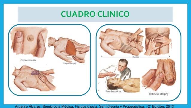 CUADRO CLINICO Argente Álvarez. Semiología Médica. Fisiopatología, Semiotecnia y Propedéutica. –2° Edición. 2013