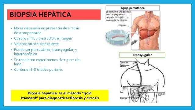 BIOPSIA HEPÁTICA • No es necesaria en presencia de cirrosis descompensada • Cuadro clínico y estudio de imagen • Valoració...