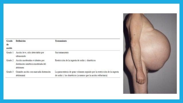 MANEJO GENERAL DE LA ASCITIS Paracentesis diagnóstica con primera presentación o con cualquier síntoma / signo sugestivo ...
