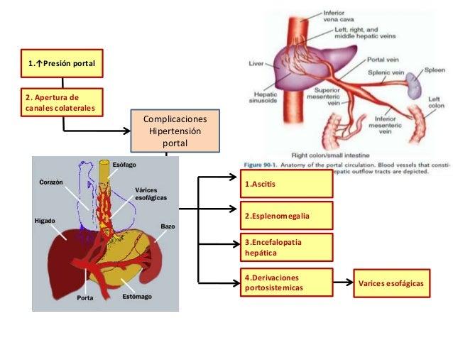Cirrosis, hipertension portal2016