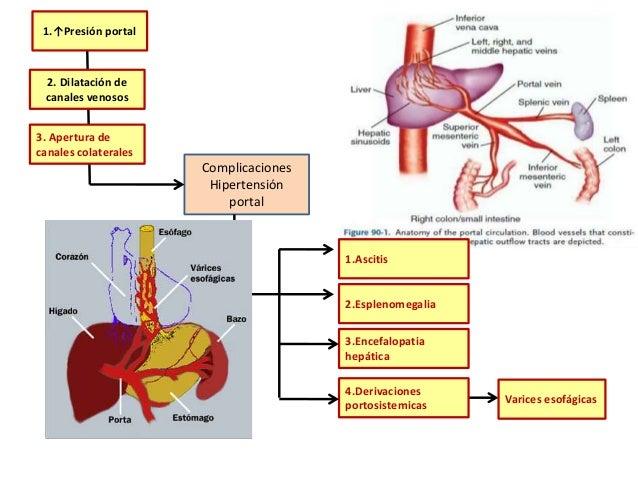 Sirosis hepatic adalah pdf creator