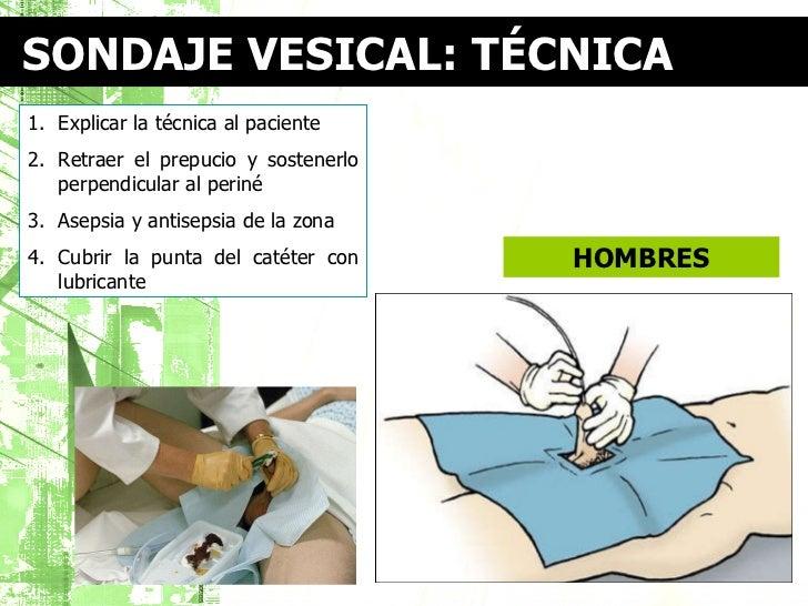Técnica de cateterismo vesical