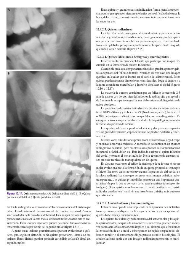 Cirugía clasificaciones posicion tercer molar