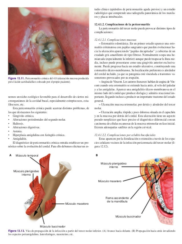 Atractivo Anatomía Molar Maxilar Molde - Imágenes de Anatomía Humana ...