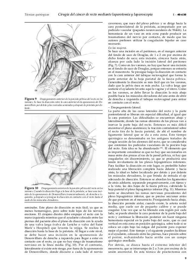EMC. Cirugía del cáncer de recto mediante laparotomía y laparoscopia