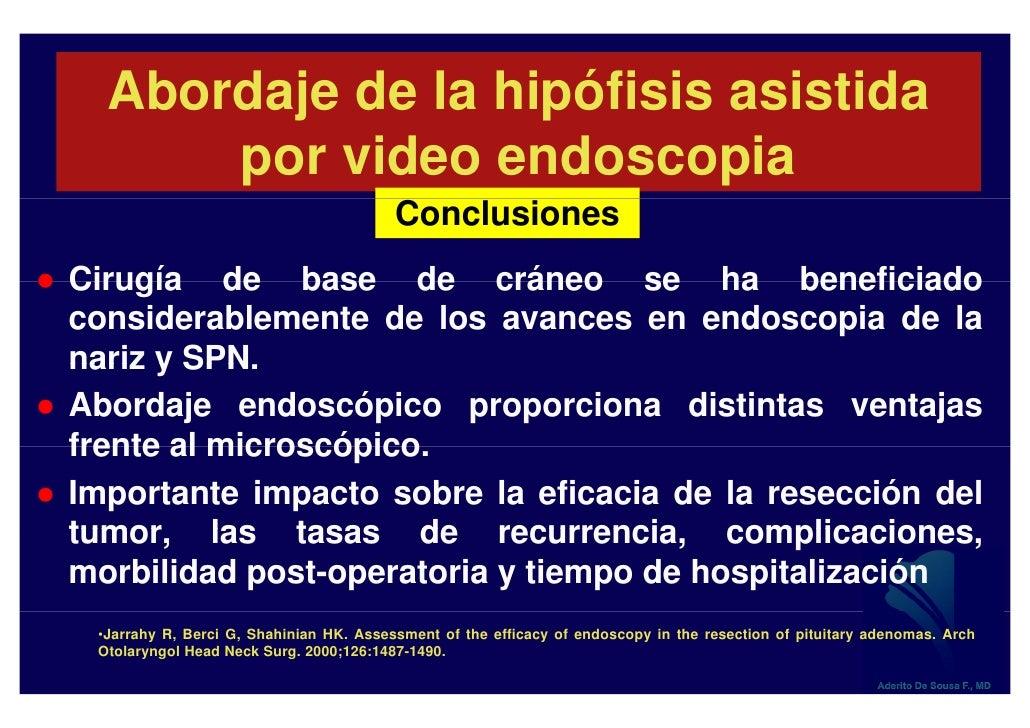 CirugíA Endoscopica Hipofisis