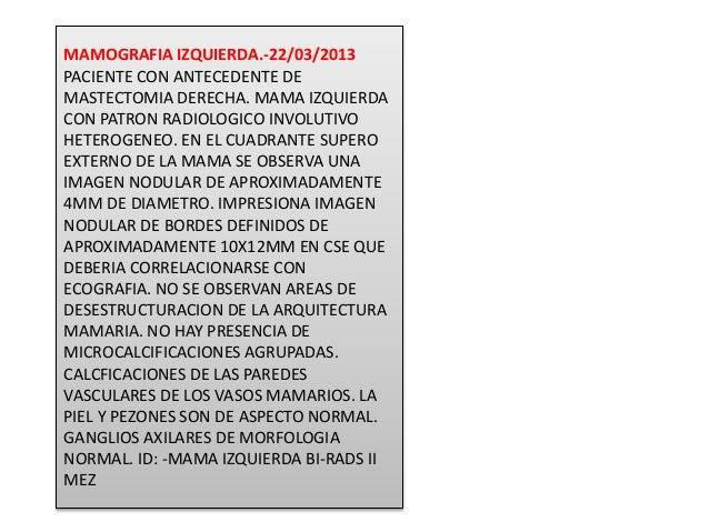 MAMOGRAFIA IZQUIERDA.-22/03/2013 PACIENTE CON ANTECEDENTE DE MASTECTOMIA DERECHA. MAMA IZQUIERDA CON PATRON RADIOLOGICO IN...