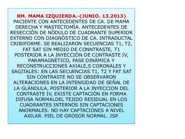 RM. MAMA IZQUIERDA.-(JUNIO. 13.2013) PACIENTE CON ANTECEDENTES DE CA. DE MAMA DERECHA Y MASTECTOMÌA. ANTECEDENTES DE RESEC...