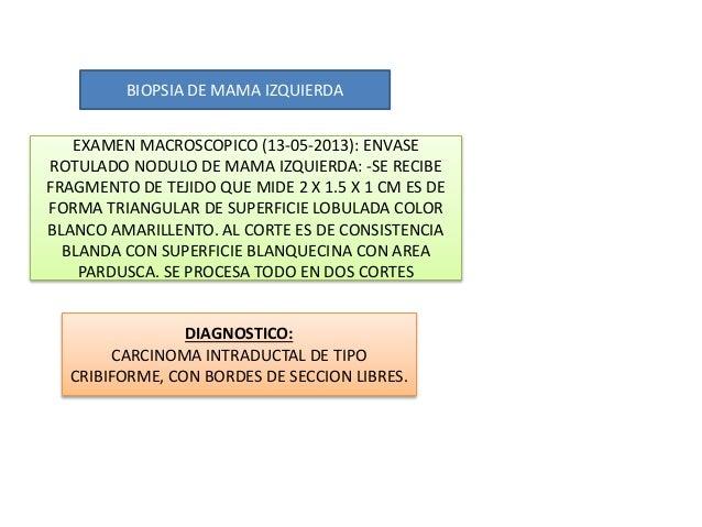 DIAGNOSTICO: CARCINOMA INTRADUCTAL DE TIPO CRIBIFORME, CON BORDES DE SECCION LIBRES. BIOPSIA DE MAMA IZQUIERDA EXAMEN MACR...
