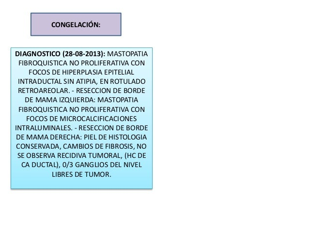 CONGELACIÓN: DIAGNOSTICO (28-08-2013): MASTOPATIA FIBROQUISTICA NO PROLIFERATIVA CON FOCOS DE HIPERPLASIA EPITELIAL INTRAD...