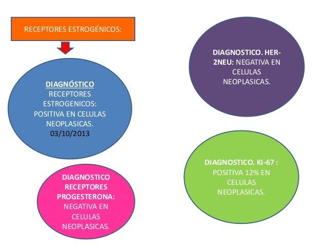 DIAGNÓSTICO RECEPTORES ESTROGENICOS: POSITIVA EN CELULAS NEOPLASICAS. 03/10/2013 RECEPTORES ESTROGÉNICOS: DIAGNOSTICO. HER...