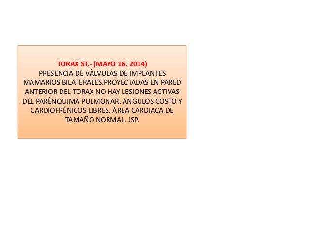 TORAX ST.- (MAYO 16. 2014) PRESENCIA DE VÀLVULAS DE IMPLANTES MAMARIOS BILATERALES.PROYECTADAS EN PARED ANTERIOR DEL TORAX...