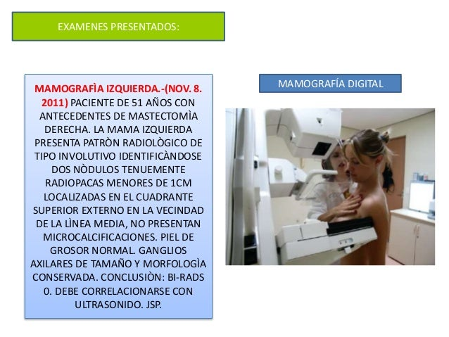 EXAMENES PRESENTADOS: MAMOGRAFÌA IZQUIERDA.-(NOV. 8. 2011) PACIENTE DE 51 AÑOS CON ANTECEDENTES DE MASTECTOMÌA DERECHA. LA...