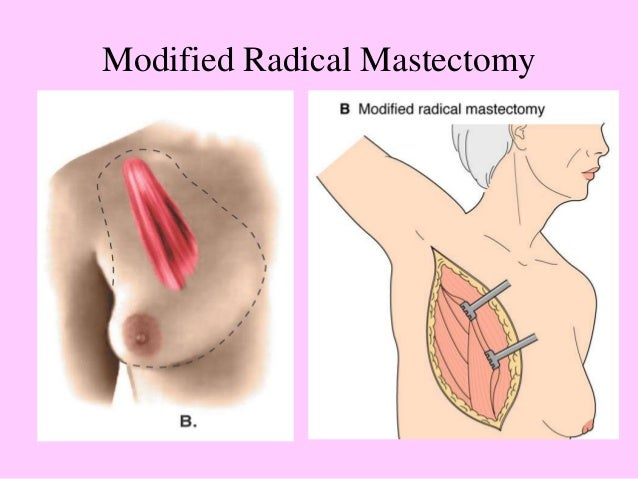 mastectomy dating sites Are you wondering how to begin dating with or after cancer how to navigate dating with cancer share pin email search the site go more in cancer living with.