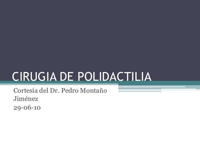CIRUGIA DE POLIDACTILIACortesía del Dr. Pedro MontañoJiménez29-06-10