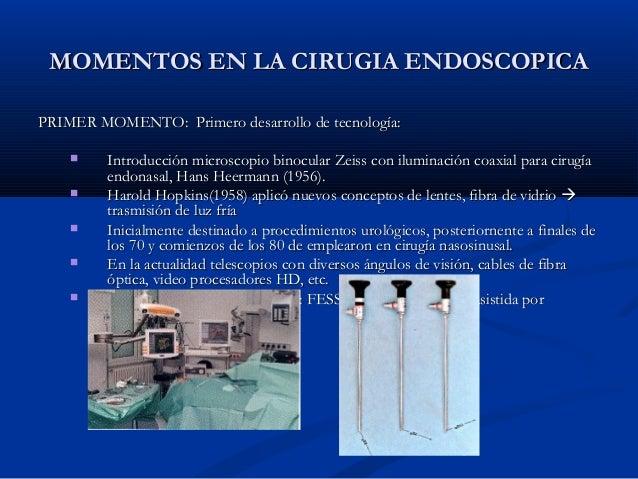Cirugia Endoscopica Nasosinusal