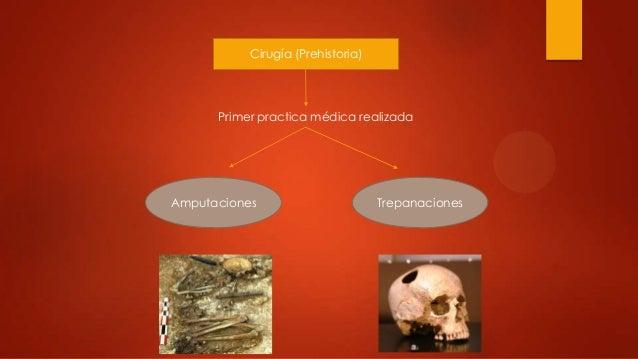 Cirugía (Prehistoria)Primer practica médica realizadaAmputaciones Trepanaciones