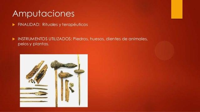 Amputaciones FINALIDAD: Rituales y terapéuticos INSTRUMENTOS UTILIZADOS: Piedras, huesos, dientes de animales,pelos y pl...