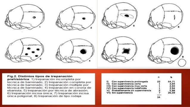 Trepanación precolombina Paracas (700 a. C): colocaban láminas de oro y cortezas defrutas para cerrar la herida Utilizar...